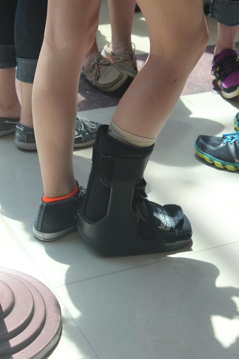 前一女生脚受伤 穿着保护脚的鞋