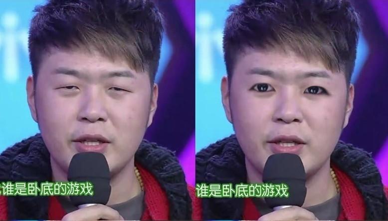 雷死人!杜海涛林永健割完双眼皮后(组图) |杜海