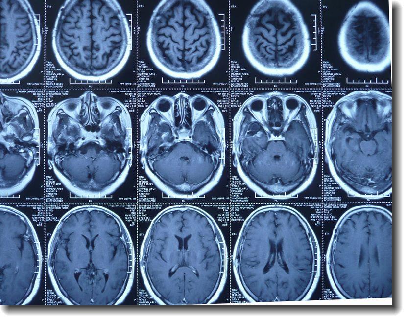脑胶质母细胞瘤的早期复发