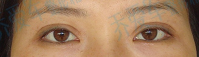 双眼皮修复----小香肠眼