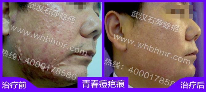 而皮肤内部结构组织不规则能够影响皮肤血液循环