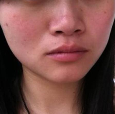 脸部皮肤过敏症状,告别隐痛,不怕人事部再冤枉