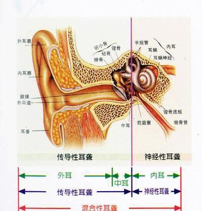 首先,先谈谈耳的大体结构,耳朵由外向内可以分为外耳,中耳和内耳3部分