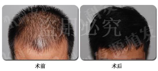 头发加密手术效果好吗?