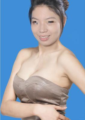做假体隆胸效果怎样做假体隆胸效果怎样